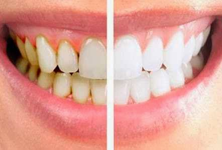Cara Memutihkan gigi_3
